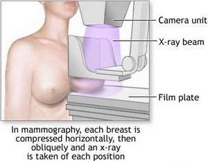 mamografija-proced