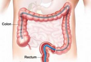 Debelo-crevo-colon-i-rectum